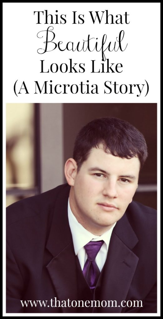 This Is What Beautiful Looks Like: A Microtia Story www.thatonemom.com